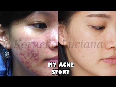 Ada yang memiliki permasalahan kulit yang sama sepertiku? Lepas dari cream dokter malah jadi bruntusan parah? Cek video acne storyku, dan untuk yang lagi berjuang dengan jerawat tetap semangat ya ^_^