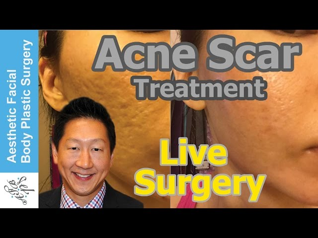 Acne Scar Vitalizer Treatment by Dr. Philip Young