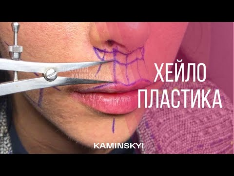 Хейлопластика - Cheiloplasty - Dr Edgar Kaminskyi