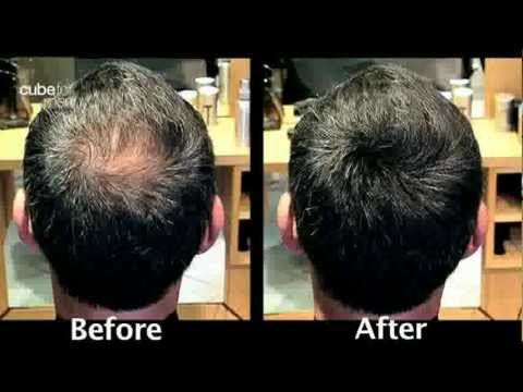 Toppik Product Demonstration a solution for Male Pattern Baldness.