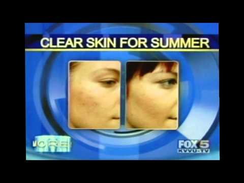 Aspire Drmatology - Getting Rid of Acne and Rosacea