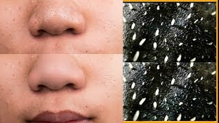 How To Get Rid OF Blackheads & Whiteheads Instantly |DIY PEEL OF MASK