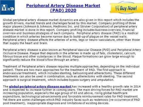 Global Peripheral Artery Disease Market (PAD) Trends & Opportunities (2015-2020)