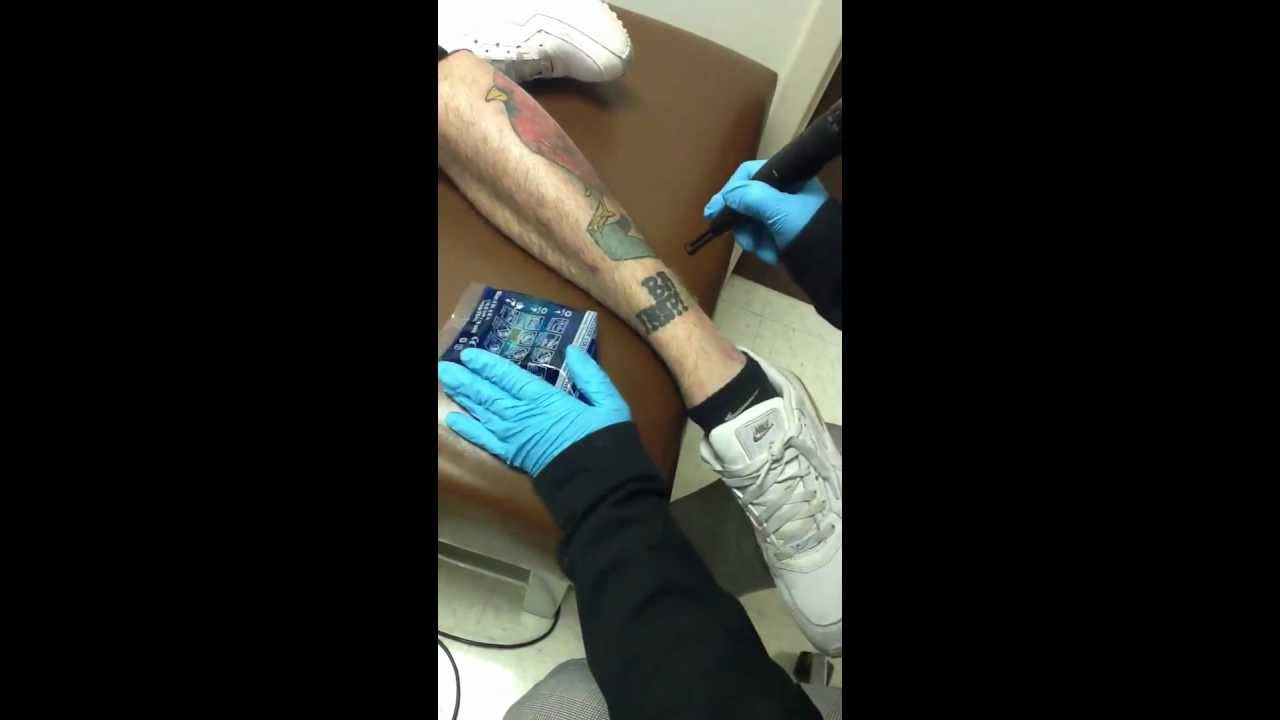 indianapolis indiana laser tattoo removal youtube