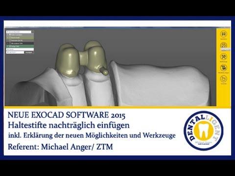 exocad dental software download