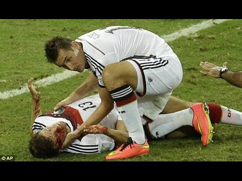 Thomas muller injury and Klose Goal fifa worldcup 2014