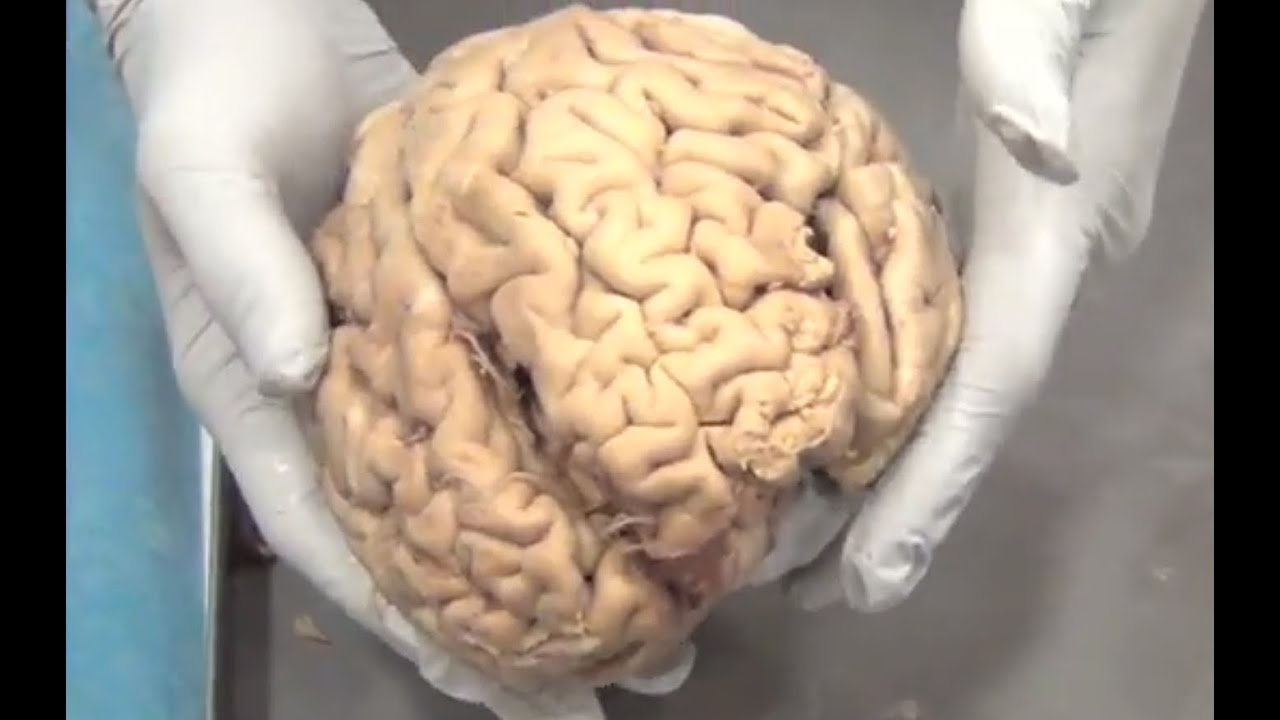 real human brains in skull