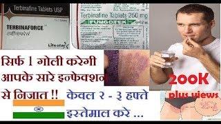 Terbina force Tablet Review in Hindi