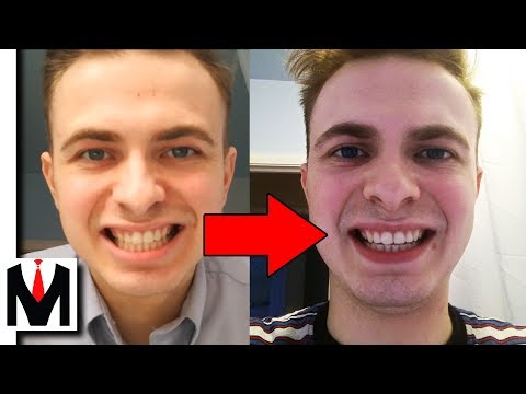 Does Activated Charcoal Work?   Carbon Coco Teeth Whitening Honest Review + How To