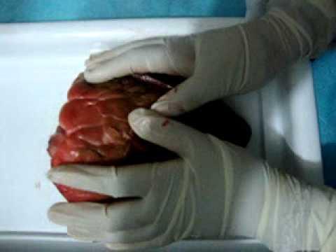 Diseccion de corazón (de vaca) 6° Ciencias