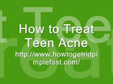 How To Treat Teen Acne - Some Astonishing Teen Acne Treatment Exposed By Ex Acne Suffrer