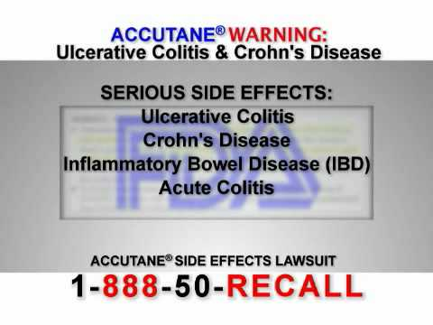Accutane Has Been Linked with Causing Crohn's Disease