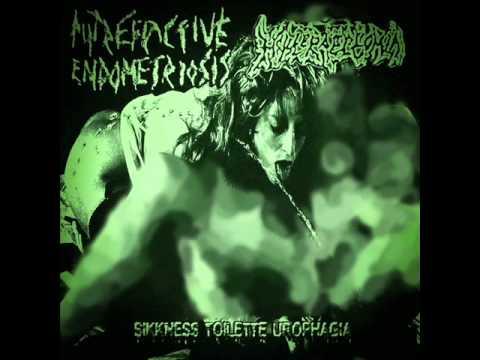 Putrefactive Endometriosis - Extreme Fucked Faces Of Slave Girls #2 video