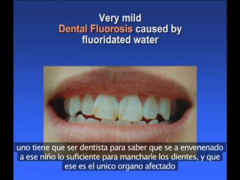Effects of Fluoride by Drs. David Kennedy and Kathleen Thiessen