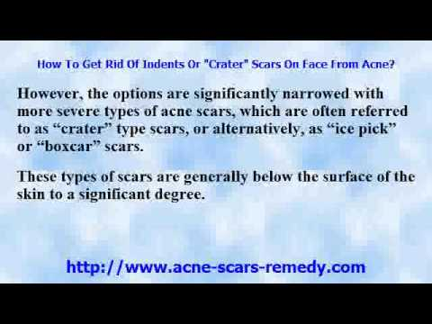 """How To Get Rid Of Indents Or """"Crater"""" Scars On Face From Acne?"""
