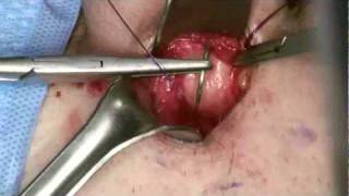 Minimally Invasive Penile Implant Surgery with AMS 700 series Penile Prosthesis