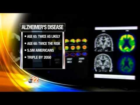 Report: Number of Women with Alzheimer's Doubles Men With Disease