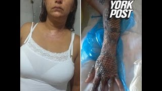 Fish scales heal woman's burned body