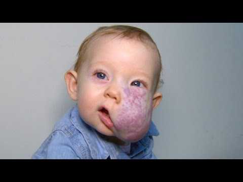 See 2-Year-Old's Incredible Transformation After Surgery To Remove Facial Tumor