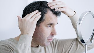 Iodine and Hair Loss