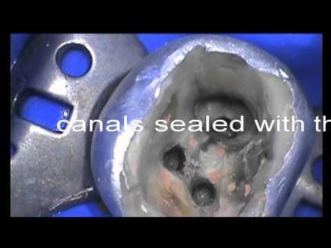 Molar tooth with deep caries restored by Vaswani Dental at Southgate London N14 near N21, EN2,EN4,