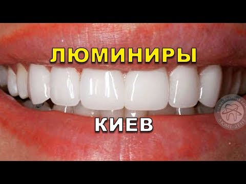 Люминиры Киев