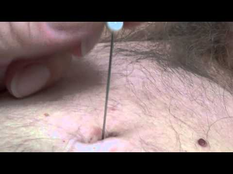 New Navel Torture With Needle - Hres Also video