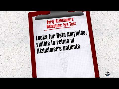 Tests Could Recognize Alzheimer's Disease During Early Stages
