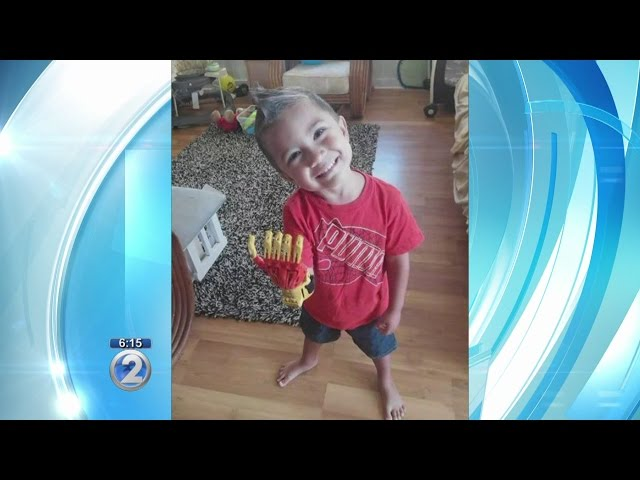 3-year-old Maui boy receives 'Ironman'-like 3-D printed hand