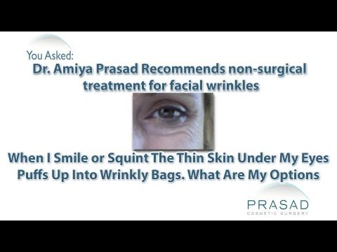 Dr. Prasad Recommends Non-Surgical Treatment for Under Eye Wrinkles