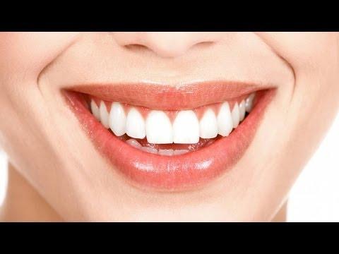Привычки вредные для зубов. Школа здоровья 01/03/2014 GuberniaTV