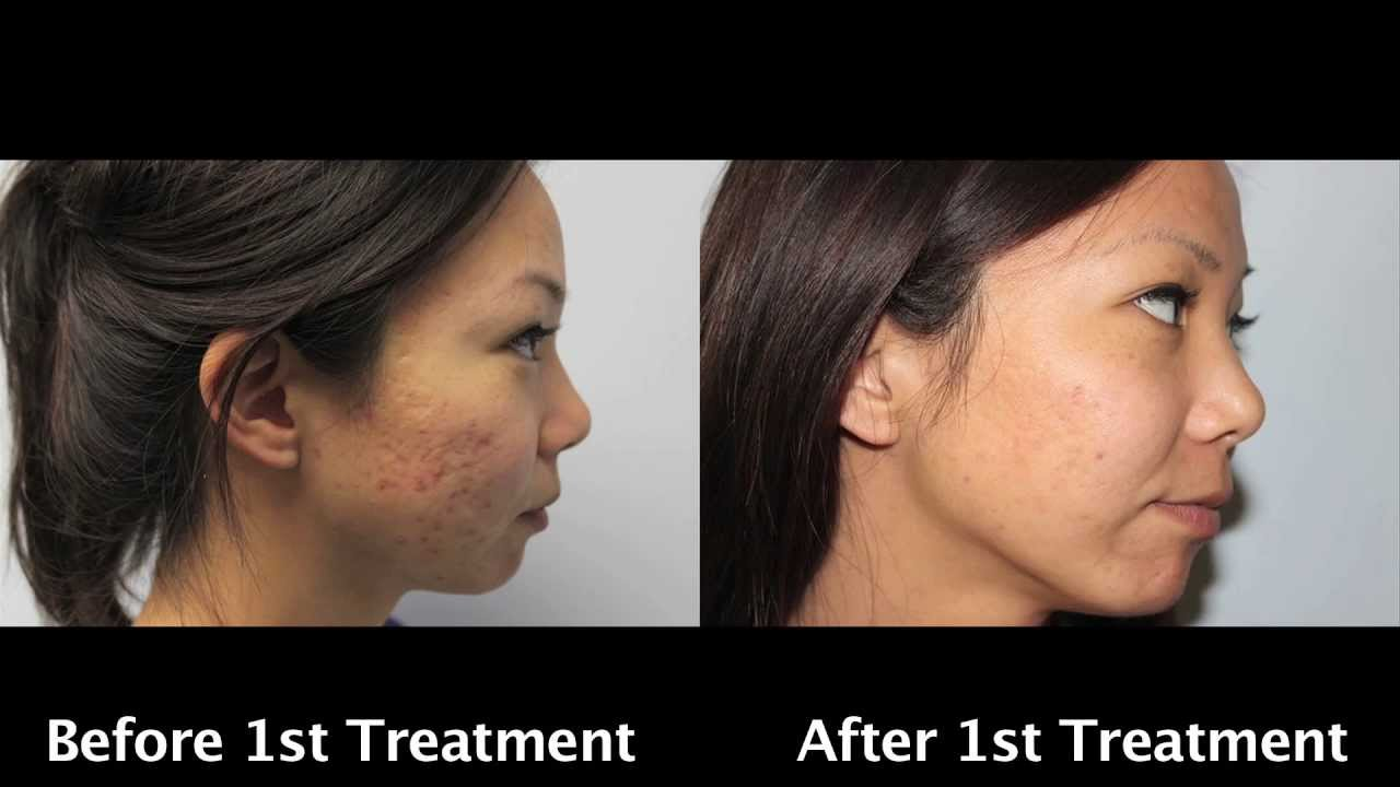Severe Acne Scars Treatment Asian Laser Acne Scar Removal