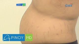 Pinoy MD: Ano ang mabisang pantanggal sa stretch marks?