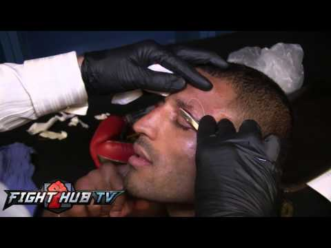 Kell Brook gets stitched up after Porter win;