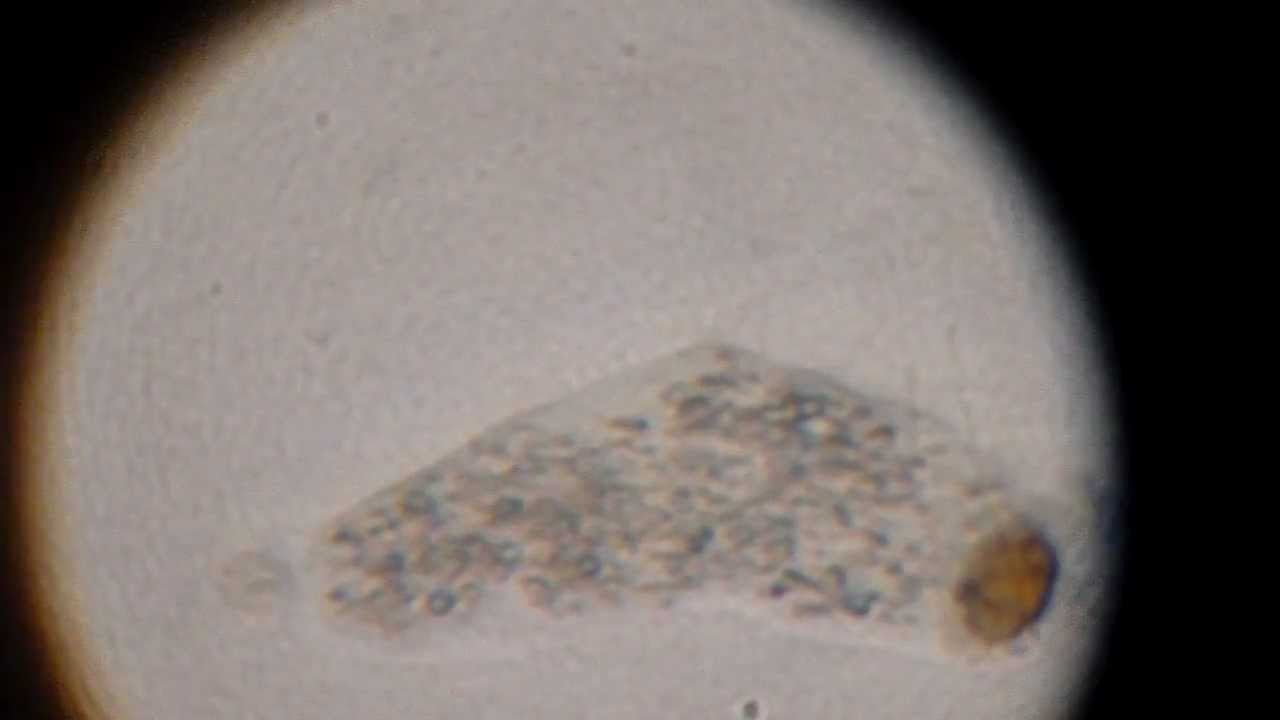 Amoeba Under Microscope Labeled Amoeba Microscope Slide