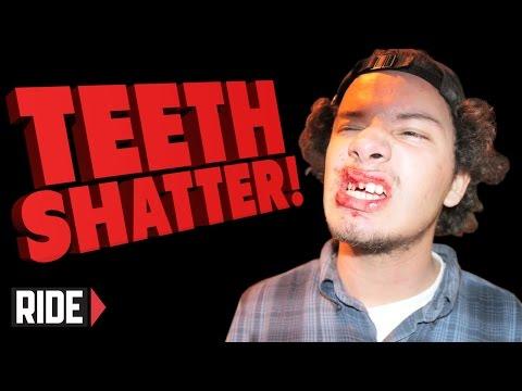 TEETH SHATTER! Skateboarding Slam - Uriel Pineda