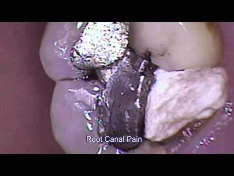 Root Canal Pain 4-09-2012