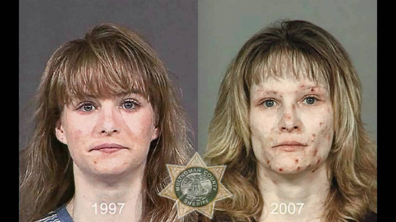 The gallery for --> Meth Face