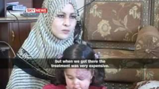Deformed babies in Fallujah Iraq
