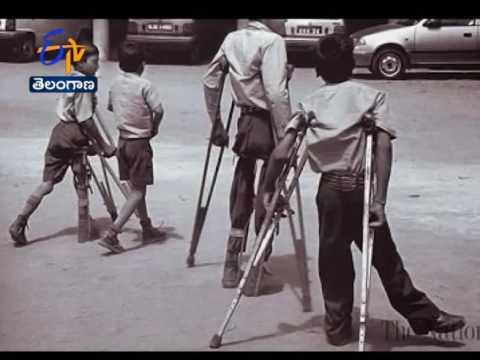 No Threat to Polio free Status of India: WHO