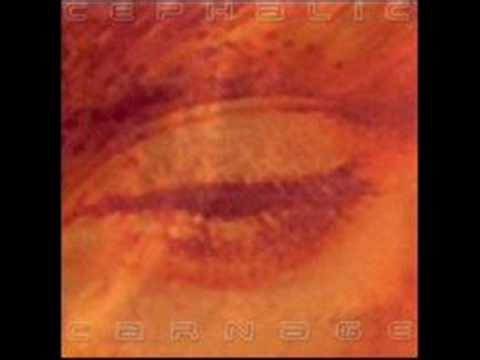 Cephalic Carnage - Friend Of Mine