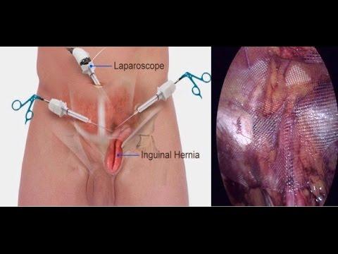 salpingectomie sous coelioscopie