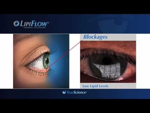 Dr Jonathan Christenbury Offers LipiFlow At Christenbury Eye Center
