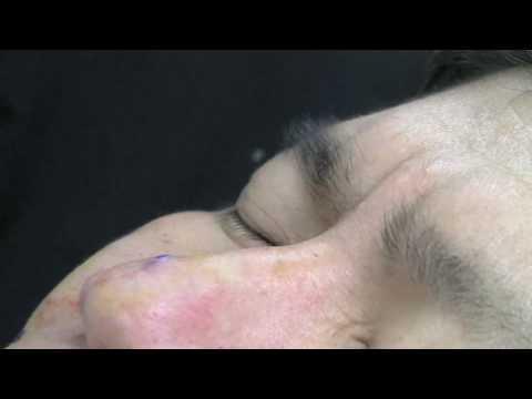 Recollagenation Permanent acne scar fix