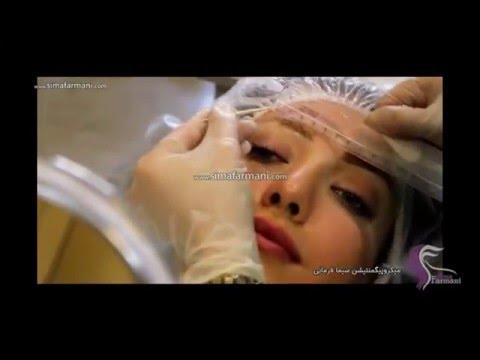 انواع بهترین لاک ابرو ایران نحوه پاک کردن تاتو ( خالکوبی) از روی بدن با لیزر.