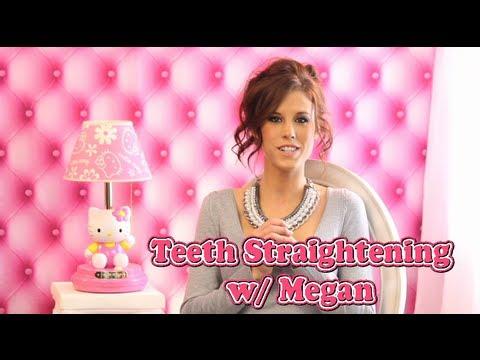 Megan's Teeth Straightening Video