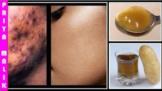 Remove Dark Spots, Black Spots, Acne Scars from Face in JUST 7 DAYS || Skin Whitening Home Remedy