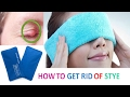 Home Remedies to Get Rid of Stye Fast, Safely and Naturally