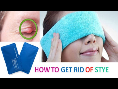 how to get rid of swollen eyes quickly
