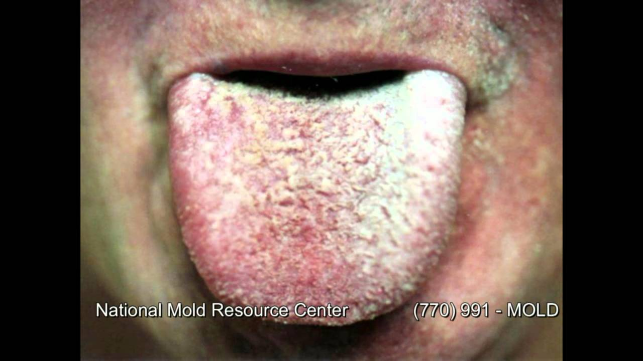 The Symptoms of Mold Exposure and Mold Illness from Black Toxic Mold Exposure - YouTube